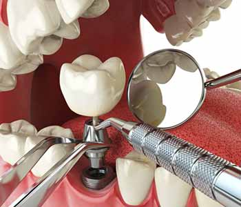 Dr. Thomas J. Rolfes at Smiles4OC offers Full mouth dental implants from a dentist near me in Costa Mesa