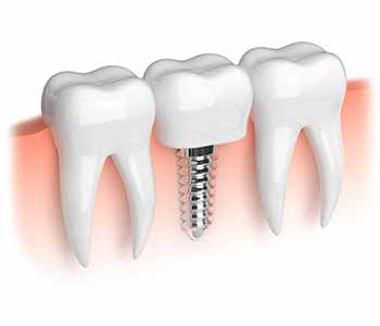 Costa Mesa dentists help patients achieve a natural looking smile with teeth implants!