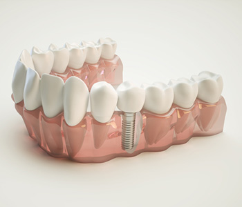 Why is it important to replace missing teeth in Costa Mesa area