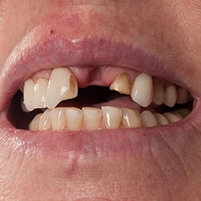 Closeup of missing tooth in the mouth
