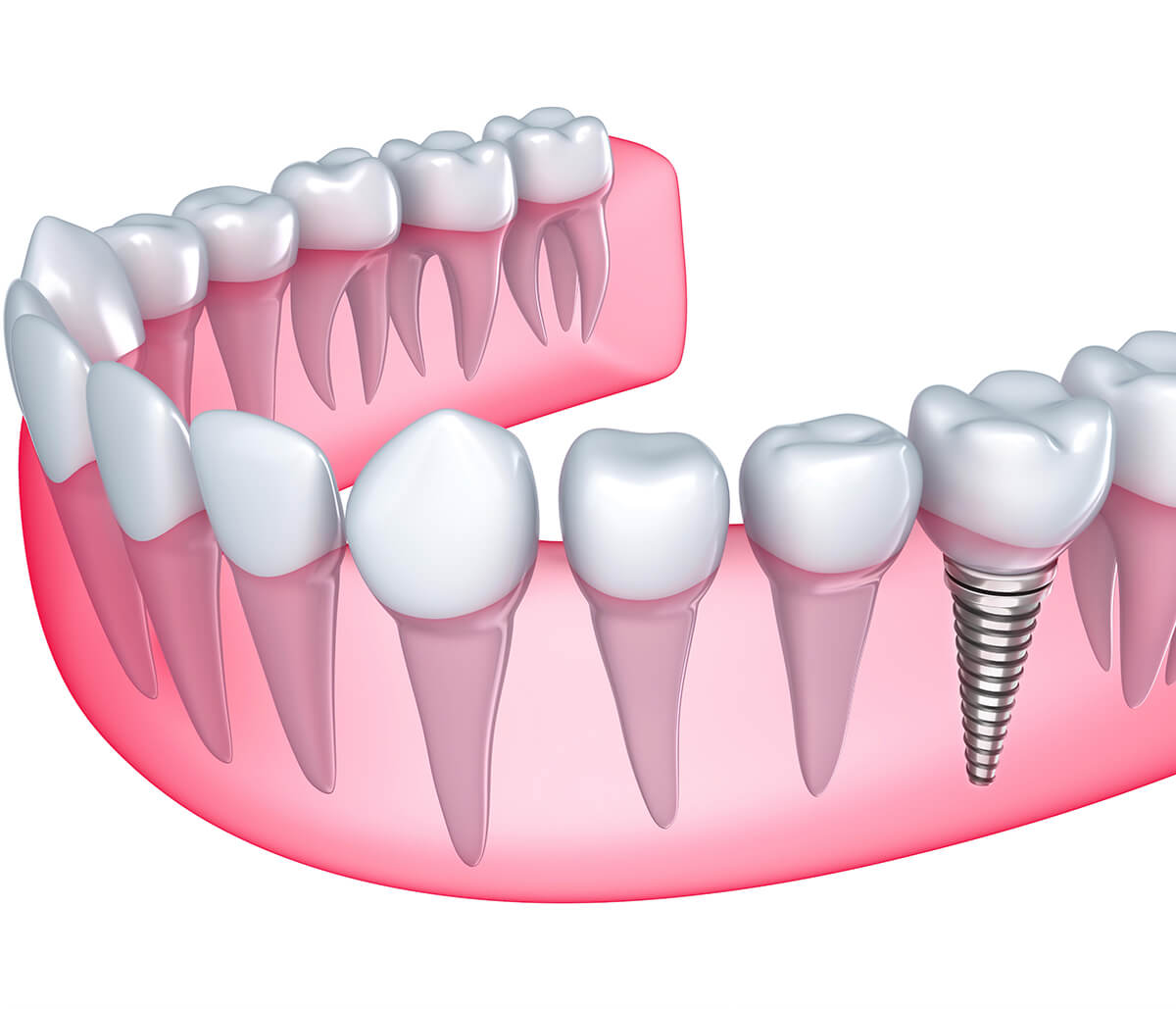High-quality Dental Implants Offered at Dentist's Office in Costa Mesa